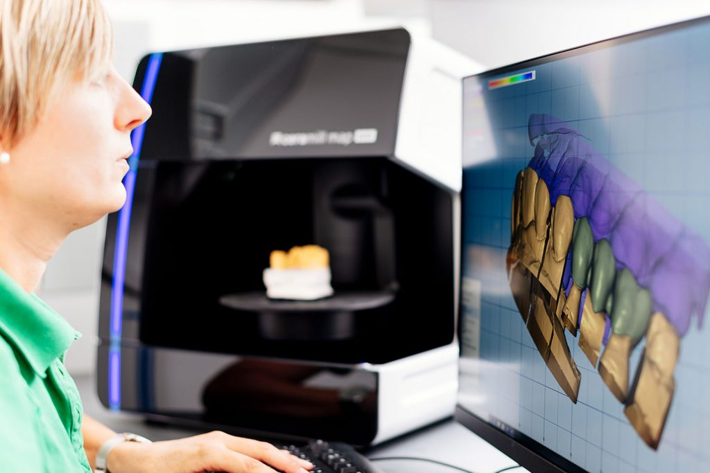 Digitale Fertigung von Zahnersatz beim Zahnarzt Laupheim.